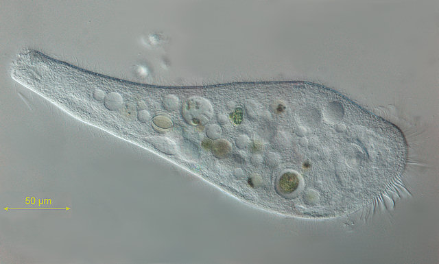 Pond life photomicrographs: Protozoa